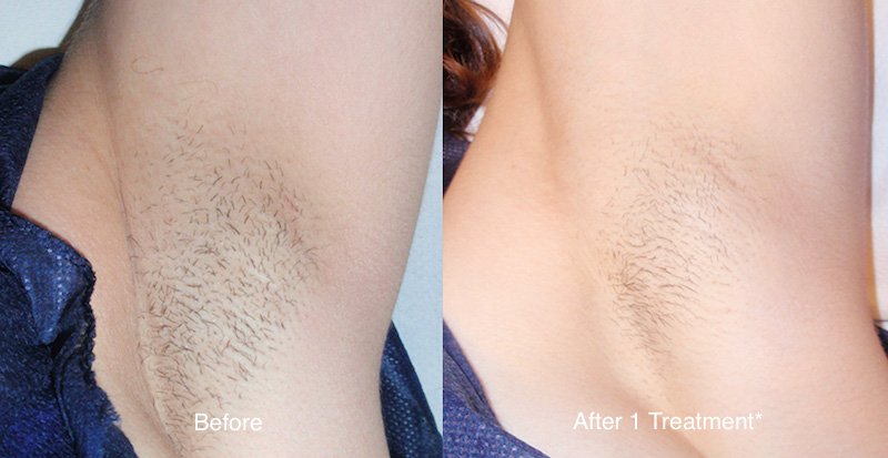 chest hair removal before and after laser hair removal